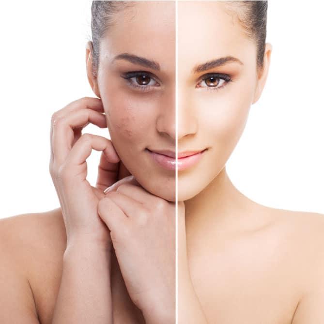 skin tightening jaco area